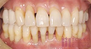 歯茎が長く見える症例