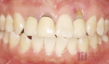 歯茎の再生治療症例(術前)