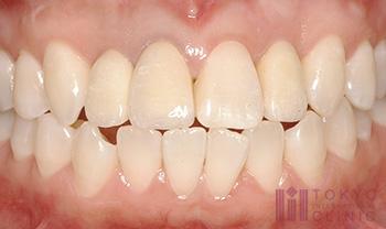 歯茎の再生治療症例(術後)