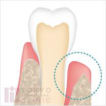 エムドゲインの適応症:垂直性骨欠損