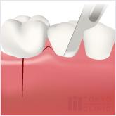 エムドゲインの流れ:歯茎を切開