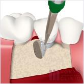 エムドゲインの流れ:プラーク・歯石を除去