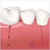 エムドゲインの流れ:歯茎を縫合