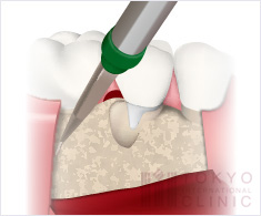 歯周外科治療(フラップ手術)イラスト