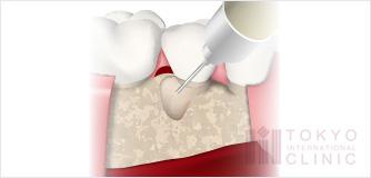 エムドゲイン(歯周組織再生療法)イラスト