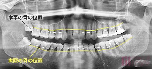 軽度歯周炎のレントゲン写真