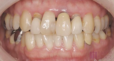重度歯周炎の症例画像2