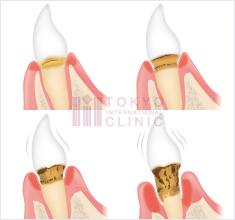 歯周病の進行段階