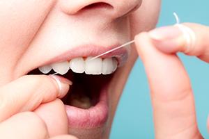 歯周病を予防するために必要なこと