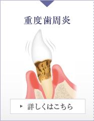 重度歯周炎