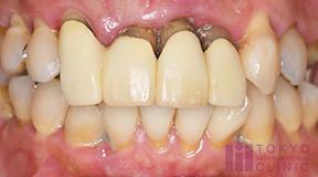 不適合な補綴物があると歯茎から血が出やすくなりますか?