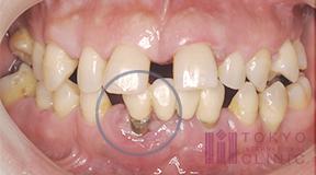歯がグラグラする症例