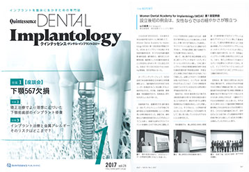 「Quintessence DENTAL Implantology」に寄稿しました。