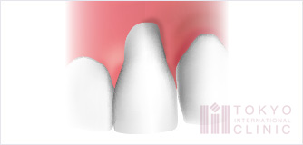歯茎の再生治療(結合組織移植術)イラスト