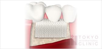 GTR(歯周組織誘導法)イラスト