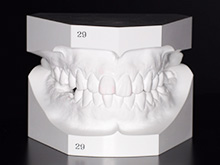 STEP13歯の模型の作製