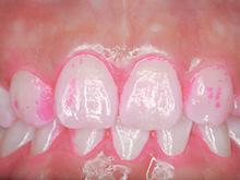 STEP14プラーク(歯垢)量の検査