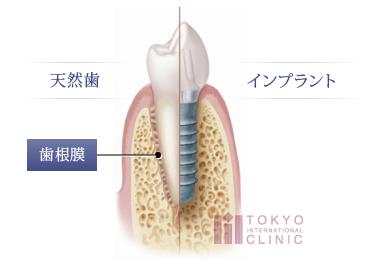 天然歯とインプラントの画像