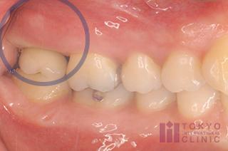 被せ物を交換して2週間後の状態です。歯茎の炎症と出血がなくなり、状態が改善されています。