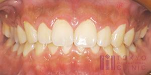 歯肉炎の状態1