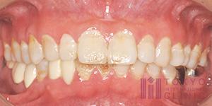 歯肉炎の状態2