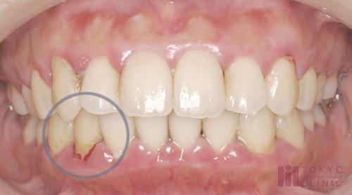 軽度歯周炎の症例画像