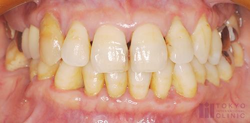 中度歯周炎の症例画像