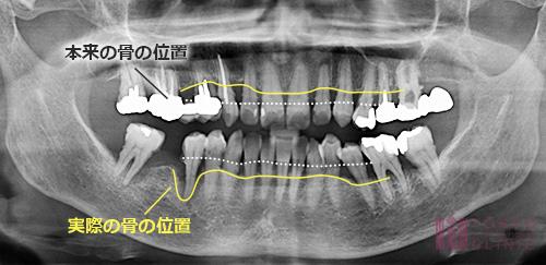 中度歯周炎のレントゲン写真