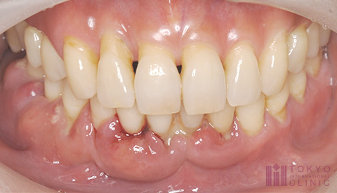 重度歯周炎の症例画像