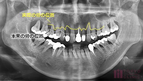 重度歯周炎のレントゲン写真2