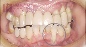 歯槽膿漏により歯が長くなってしまった状態