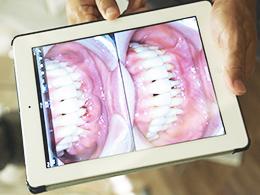 その他、歯茎の異変イメージ