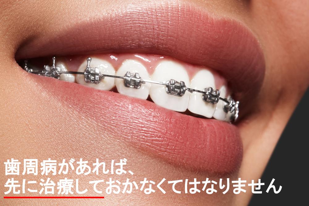 歯周病でも矯正治療はできる?美しい歯並びを手に入れるために