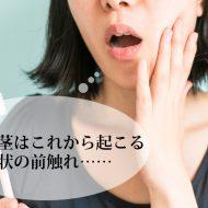 抗生物質 フロモックス 市販 歯茎の腫れ