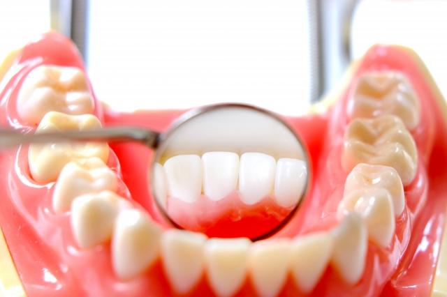 歯槽膿漏の原因
