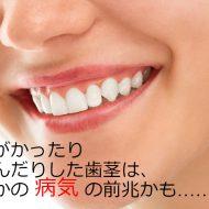 方法 を 歯茎 腫れ の ひく
