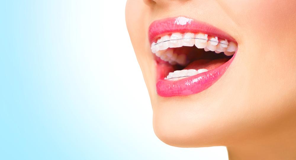歯周病をきちんと治し、矯正治療によって美しい歯並びに