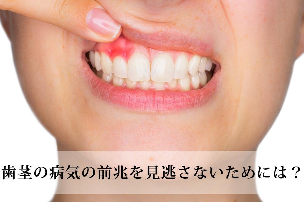 歯茎の腫れは重大な病気のサイン