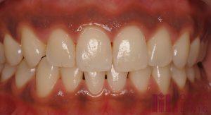 歯茎が黒くなる原因②金属製の素材が錆びて溶け出す「メタルタトゥー」