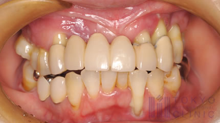 歯槽 膿 漏 試験問題の作成に関する手引き(平成30年3月)